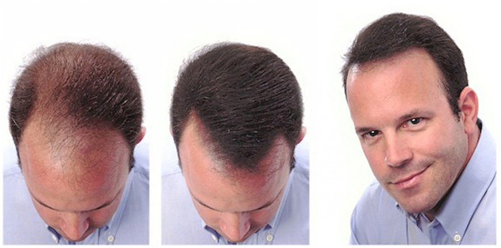Форма роста волос на голове