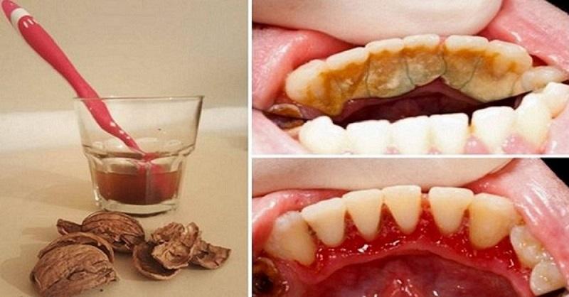 Как избавиться от зубной боли в домашних условиях после удаления - Раум Профи