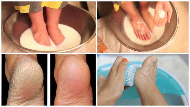 Ванночки для ног с перекисью водорода грибок