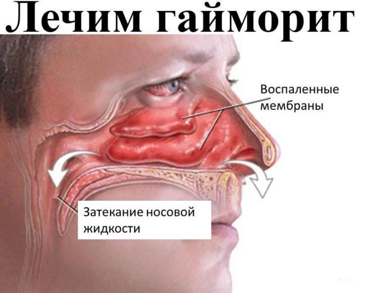 С носа течет желтая липкая жидкость как лечить