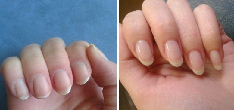 Маникюр как отрастить быстро ногти